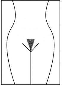 Pubic_hair_style_Bikini_Line